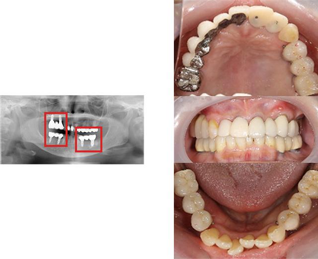 清誠歯科のインプラント治療症例① 70代女性【入れ歯での悩みが多くインプラント治療をされた症例】AFTER