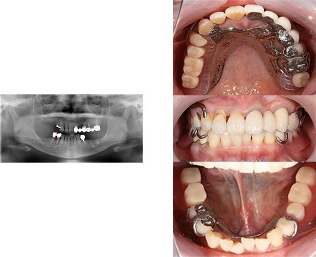 清誠歯科のインプラント治療症例① 70代女性【入れ歯での悩みが多くインプラント治療をされた症例】BEFORE