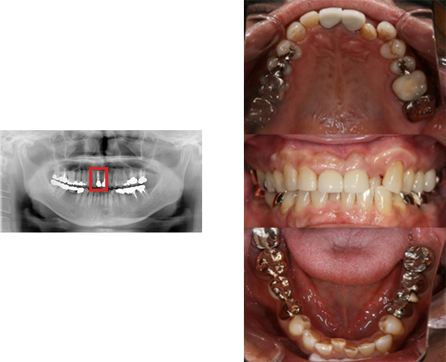 清誠歯科のインプラント治療症例② 60代男性【根の治療の予後不良のためインプラント治療をされた症例】AFTER