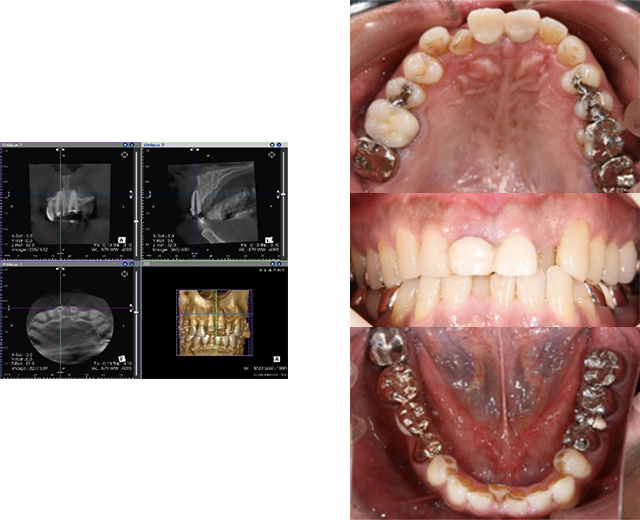 清誠歯科のインプラント治療症例② 60代男性【根の治療の予後不良のためインプラント治療をされた症例】BEFORE