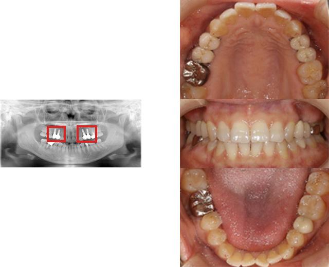 清誠歯科のインプラント治療症例③ 40代女性【点滴の鎮静法を用いてインプラント治療をされた症例】AFTER