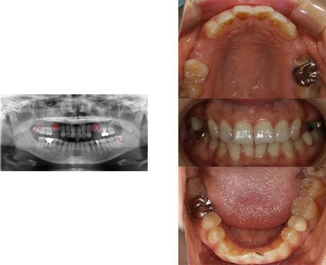 清誠歯科のインプラント治療症例③ 40代女性【点滴の鎮静法を用いてインプラント治療をされた症例】BEFORE