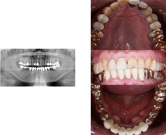 清誠歯科のインプラント治療症例④ 70代男性【内科医と対診してインプラント治療をされた症例】BEFORE