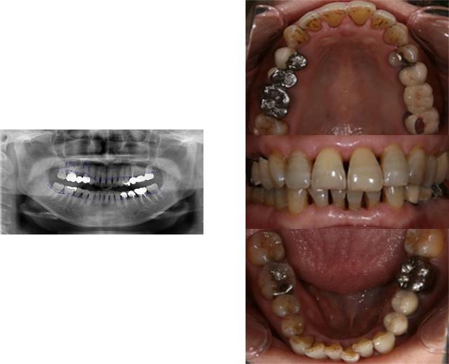 清誠歯科のインプラント治療症例⑤ 60代女性【上顎洞底挙上術を用いてインプラント治療をされた症例】BEFORE