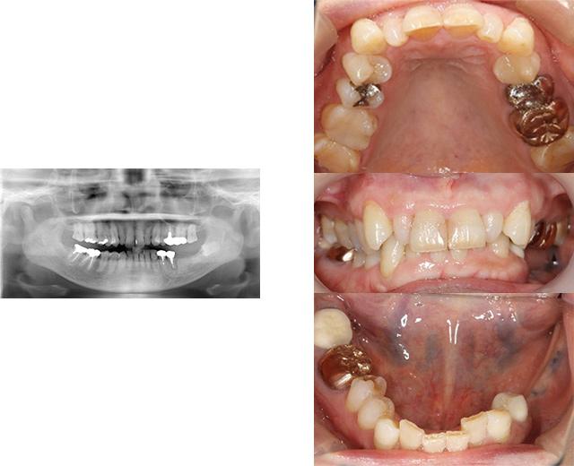 清誠歯科のインプラント治療症例⑥ 60代女性【ブリッジが取れてしまい、インプラント治療をされた症例】BEFORE
