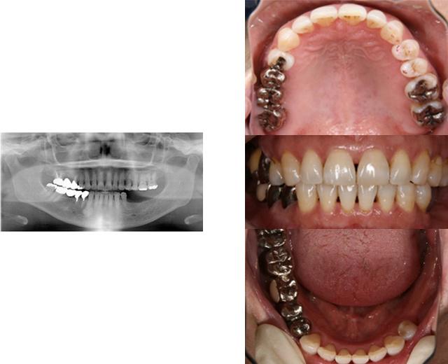 清誠歯科のインプラント治療症例⑦ 60代女性【入れ歯やブリッジの部位をインプラントにされた症例】BEFORE