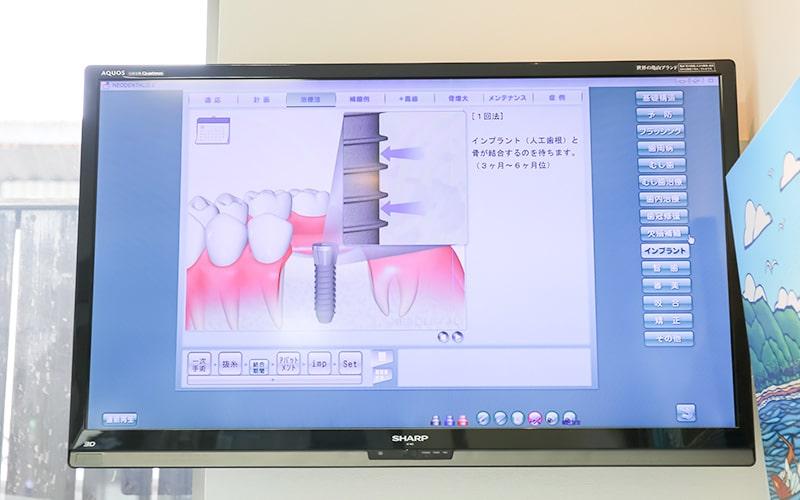 清誠歯科のインプラント治療の流れ|手術後の治療の流れ