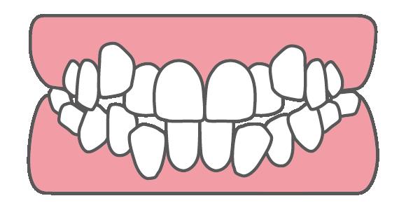 乱抗歯(叢生)