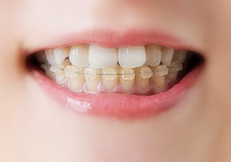 ホワイトブラケットによる歯科矯正