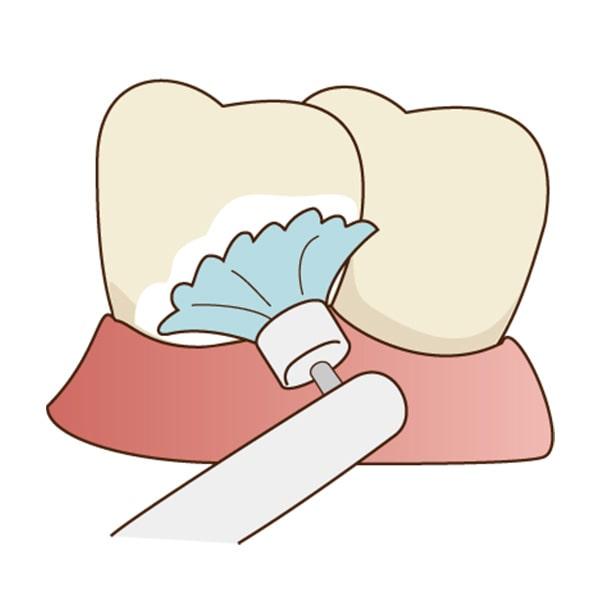 清誠歯科のPMTCの流れ|歯の表面にペースト状の研磨剤を塗り、ポリッシング用のブラシで磨きます。