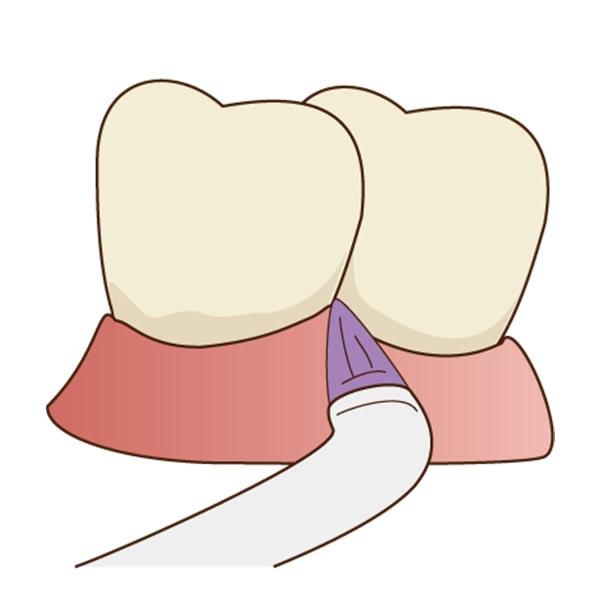 清誠歯科のPMTCの流れ|ラバーチップを使って歯と歯の間の汚れを落とします。