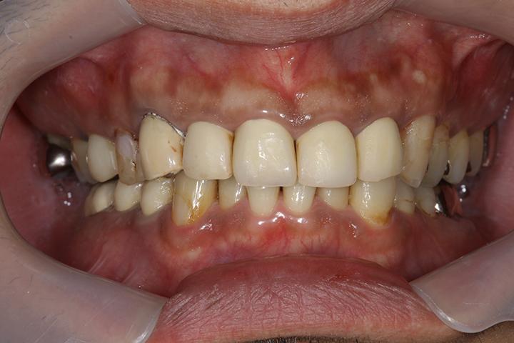 清誠歯科のガムピーリングの症例|20代女性 BEFORE