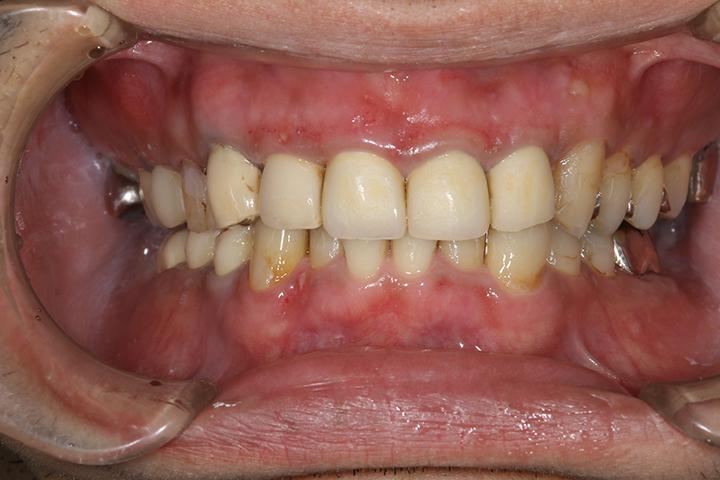 清誠歯科のガムピーリングの症例|20代女性 AFTER