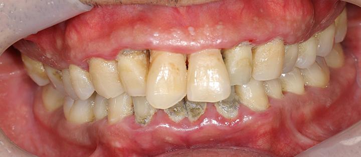 清誠歯科の歯周病治療症例① 50代男性 【歯周病治療を受けられた症例】BEFORE
