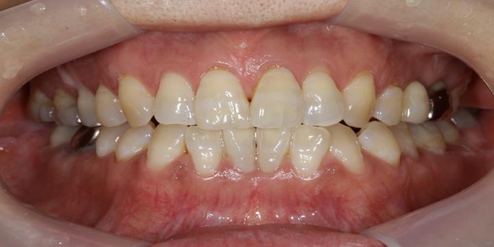清誠歯科のホワイトニングの症例|50代女性 【ホワイトニングを受けられた症例】BEFORE