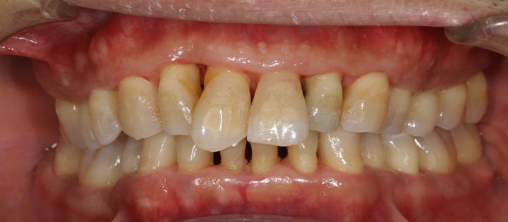 清誠歯科の歯周病治療症例① 50代男性 【歯周病治療を受けられた症例】AFTER