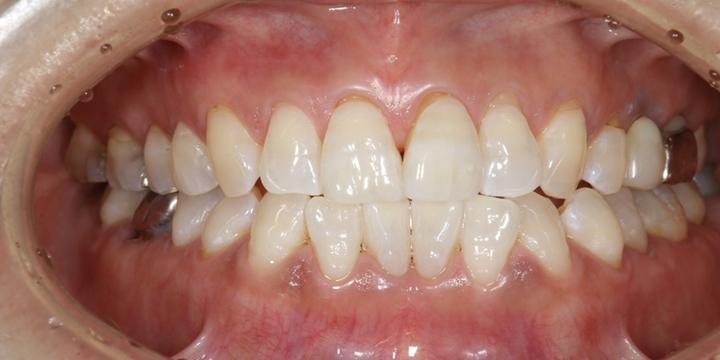 清誠歯科のホワイトニングの症例|50代女性 【ホワイトニングを受けられた症例】AFTER