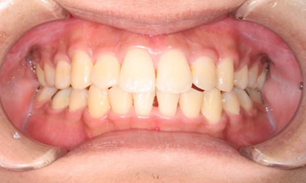 清誠歯科のインプラント治療症例20代男性 【矯正治療を受けられた症例】AFTER