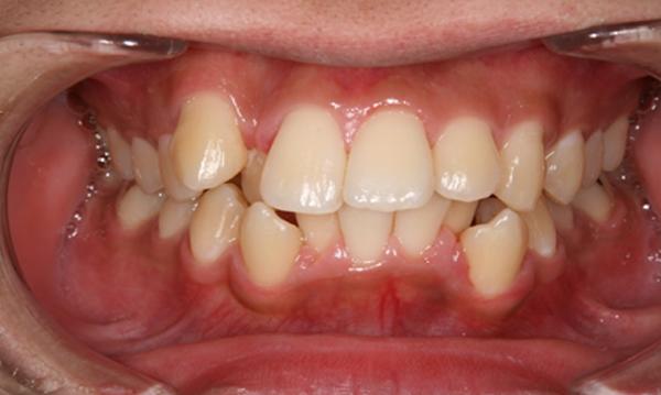 清誠歯科のインプラント治療症例20代男性 【矯正治療を受けられた症例】BEFORE